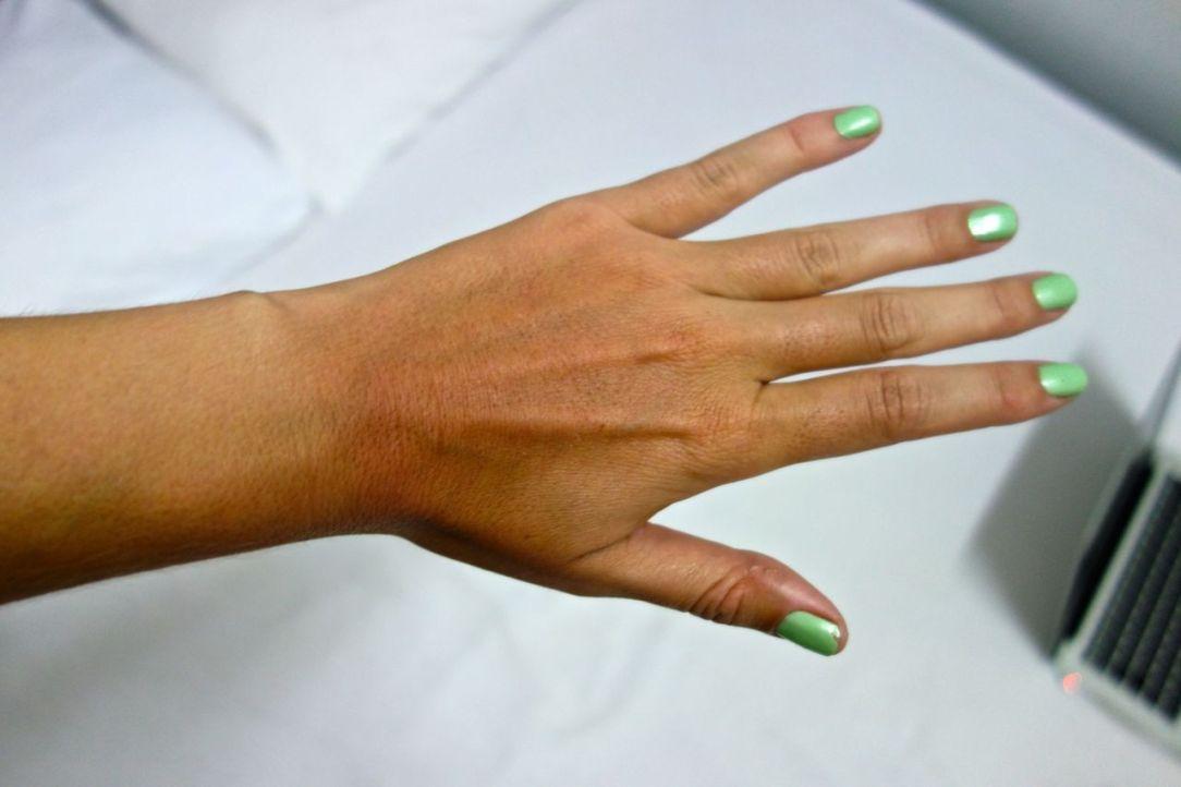 Brunbrända fyrkanter på händerna: check!